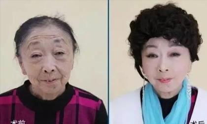 Cụ bà 71 tuổi quyết phẫu thuật thẩm mỹ để đẹp đôi với người tình 32 tuổi