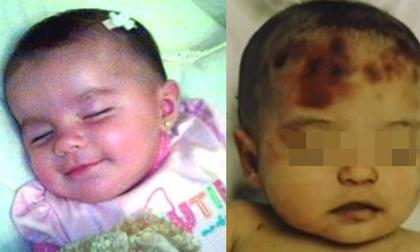 Vụ xâm hại chấn động: Bé gái 5 tháng tuổi bị cha đẻ, cậu ruột lạm dụng, bạo hành, mẹ thờ ơ