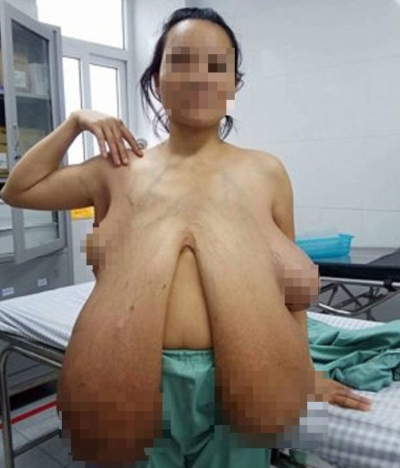 Hình ảnh mới nhất về người phụ nữ có bộ ngực khổng lồ sau khi phẫu thuật - 1