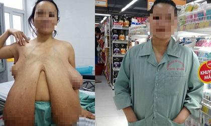 Hình ảnh mới nhất về người phụ nữ có bộ ngực khổng lồ sau khi phẫu thuật
