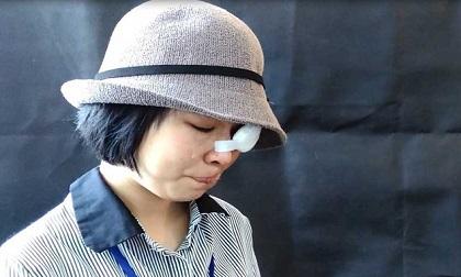 Nữ sinh bị tạt acid: 'Em từng rất tuyệt vọng'