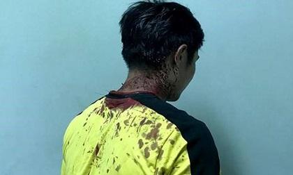Giang hồ đập tan hoang 5 phòng trọ, trung úy CSGT bị đánh chảy máu đầu
