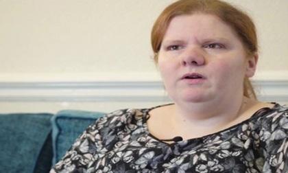 Kỳ lạ cô gái bị đồng nghiệp xa lánh vì cơ thể có mùi như cá, hành