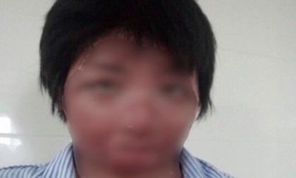 9X xinh đẹp biến dạng toàn bộ gương mặt do bị chồng tẩm xăng đốt