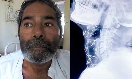 Tìm thấy 75 cây kim trong cơ thể của bệnh nhân