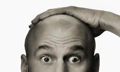 Mải miết nghiên cứu chữa ung thư, khoa học vô tình tìm ra đột phá trị... hói đầu