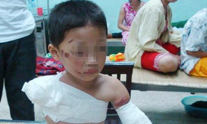 Câu chuyện thương tâm về tai nạn của trẻ khiến ai biết cũng ám ảnh