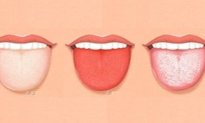 Lưỡi có 4 biểu hiện này, hãy đi kiểm tra sức khoẻ cấp tốc