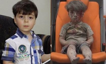Cuộc sống hiện tại của cậu bé Syria từng gây ám ảnh thế giới với gương mặt bê bết máu