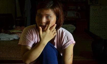 Tâm sự của người phụ nữ sau li hôn vẫn bị chồng đánh nhập viện