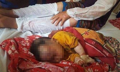 Lào Cai: Nổ khí gas, 10 người trong gia đình bị bỏng nặng