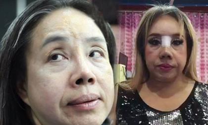 Nữ đại gia Thái Lan 'yêu' 28 lần/ngày xuất hiện trở lại với chiếc mũi 'mới toanh'