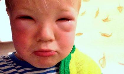Mẹ vừa nhuộm tóc, con trai 2 tuổi bị mù mắt tạm thời sau 20 phút ôm mẹ ngủ