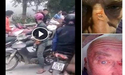 Bất ngờ với tâm thư của người bạn ông Tây bị 5 người Việt đánh ở Sa Pa