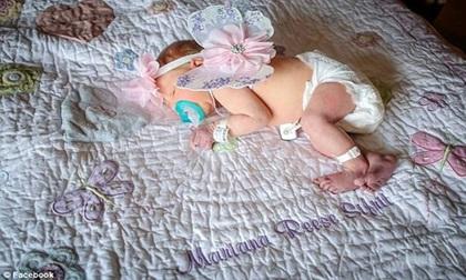Khách lạ đến thăm và hôn khiến bé sơ sinh 18 ngày tuổi tử vong