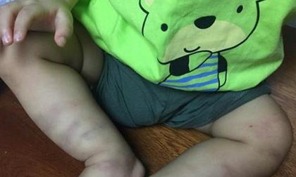 Vụ bé trai 14 tháng tuổi nghi bị bạo hành: Người mẹ buôn bán ma túy tha lôi cháu bé lang thang khắp nơi