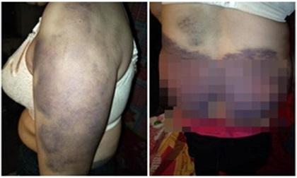 Người phụ nữ bị chồng bạo hành suốt 20 năm, biến thành 'nô lệ' phục vụ cho nhân tình của chồng