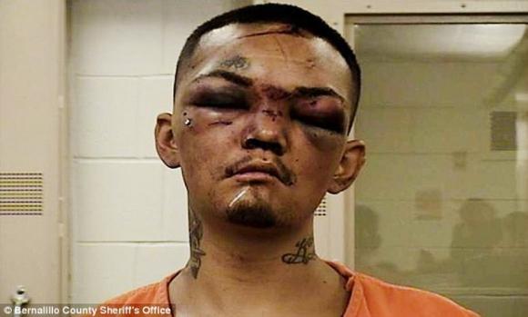 Thanh niên sang chảnh bị đánh thâm tím mặt mày vì dám đánh cắp ô tô của những người không nên dính dáng - Ảnh 2.