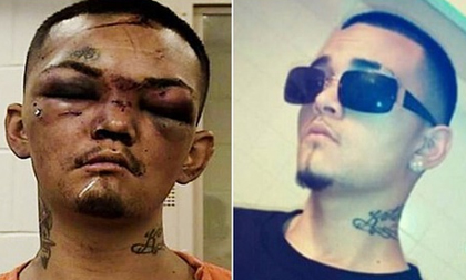 Thanh niên sang chảnh bị đánh thâm tím mặt mày vì dám đánh cắp ô tô của những người không nên dính dáng
