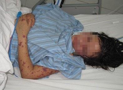 HN: Cô gái 18 tuổi bị cách ly khẩn cấp vì viêm não mô cầu - 1