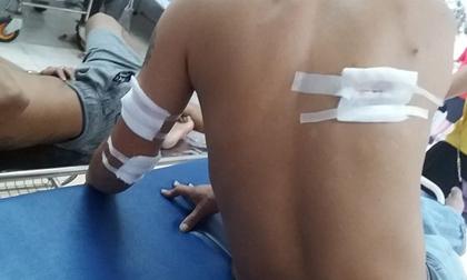 Thanh Hóa: 3 thanh niên bị nhóm người bịt mặt bắn trọng thương