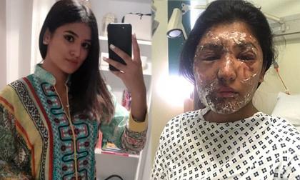 Nữ sinh từng bị tạt axit vào đúng dịp sinh nhật khoe ảnh hồi phục đáng kinh ngạc