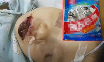 Bé gái 2 tuổi TQ bị bỏng toàn bộ miệng vì ăn nhầm gói tẩy lồng máy giặt