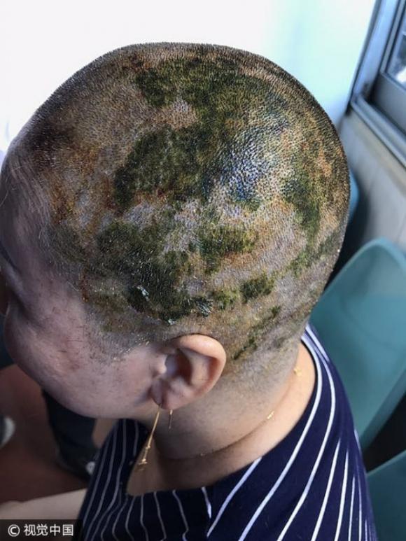 Nhuộm tóc 4 lần trong 7 tiếng để có màu xanh lá, người phụ nữ bị sốc phản vệ và cái kết không mong muốn - Ảnh 3.