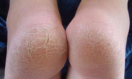 Tưởng vô hại, nhưng các vết chai chân này có thể là dấu hiệu của một căn bệnh cực kỳ nguy hiểm