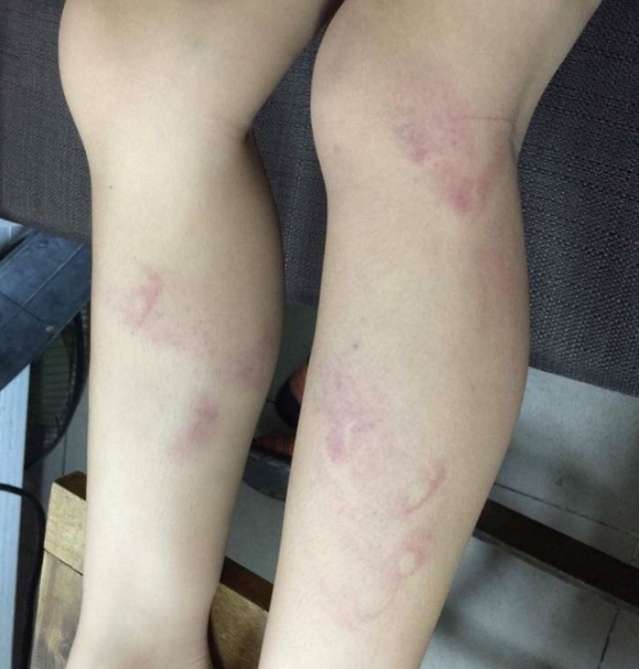 Vết thâm tím ở chân của học sinh bị cho là giáo viên trường tiểu học Nguyễn Tri Phương đánh. (Facebook phụ huynh N.T.H).