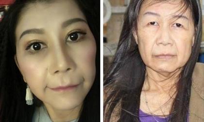 22 tuổi mà bị lão hóa như cụ bà 80, cô gái lột xác nhờ phẫu thuật thẩm mỹ