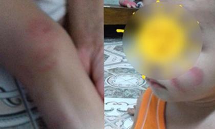 Hà Nam: Phụ huynh 'tố' giáo viên mầm non bỏ lớp khiến các cháu cào nhau rách mặt