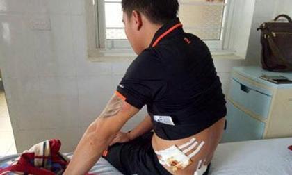 Nghệ An: Dùng súng truy sát tại quán karaoke trong đêm, 4 người nhập viện