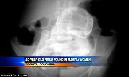Chuyện kỳ bí về những người phụ nữ mang bào thai hàng chục năm chưa đẻ