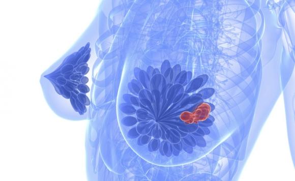 Thêm thực phẩm giảm nguy cơ ung thư vú, có ngay trong bếp nhà bạn, là phụ nữ hãy trang bị ngay - Ảnh 1.