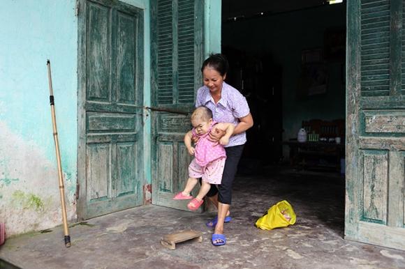 Xót xa người mẹ già gần 3 thập kỷ chăm sóc đứa con không bao giờ lớn - 1