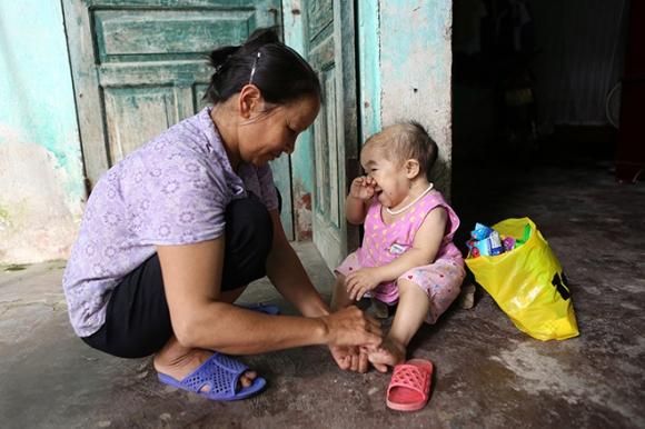 Xót xa người mẹ già gần 3 thập kỷ chăm sóc đứa con không bao giờ lớn - 2