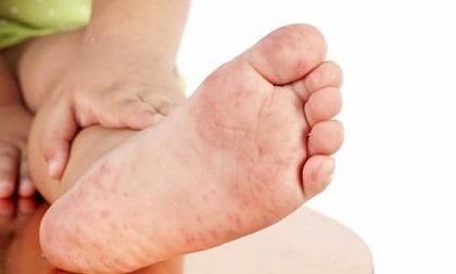 Bộ Y tế đã có công văn khẩn về phòng bệnh chân tay miệng