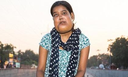 Căn bệnh quái ác khiến thiếu nữ mang khuôn mặt của 'quỷ dữ' và bị cả xã hội ruồng bỏ