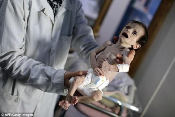 Em bé Syria với thân hình chỉ còn da bọc xương giữa bom đạn chiến tranh khiến cả thế giới xót xa - Ảnh 3.