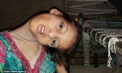 Bệnh lạ khiến bé gái bị gập nghiêng hẳn cổ