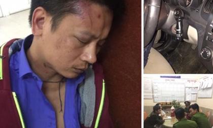 Người nhà tố bảo vệ bệnh viện phụ sản Hà Nội đánh người dã man