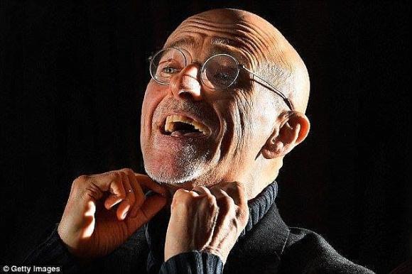 Bác sĩ Italia tuyên bố lần đầu ghép đầu người thành công - 1