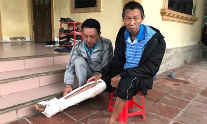 Con trai đánh bố gãy xương, bầm tím khắp người: 'Nó còn mang xăng định đốt cả bố'