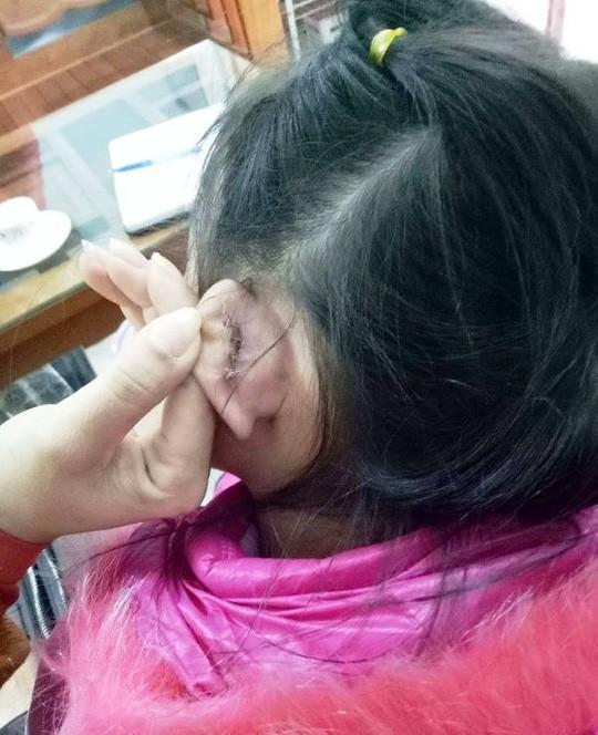 Học sinh bị rách tai khâu 4 mũi, hiệu trưởng nói nghe phong thanh - Ảnh 1.
