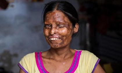 """Xót xa 2 mẹ con dù bị tra tấn dã man vẫn phải sống với người chồng """"ác quỷ"""""""