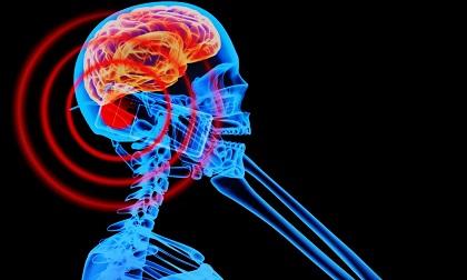 7 vị trí tuyệt đối không được để điện thoại tránh u não, ung thư