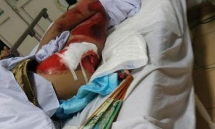 Hà Nội: Chủ nhà bị nhóm trộm cán xe tải qua người