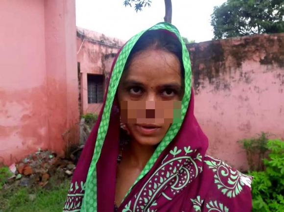 Tâm sự đẫm nước mắt của người vợ bị chồng dùng dao cắt đứt mũi vì 17 triệu - 1