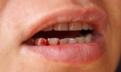 Nếu bị chảy máu chân răng bạn đừng chủ quan hãy tới bệnh viện khám ngay